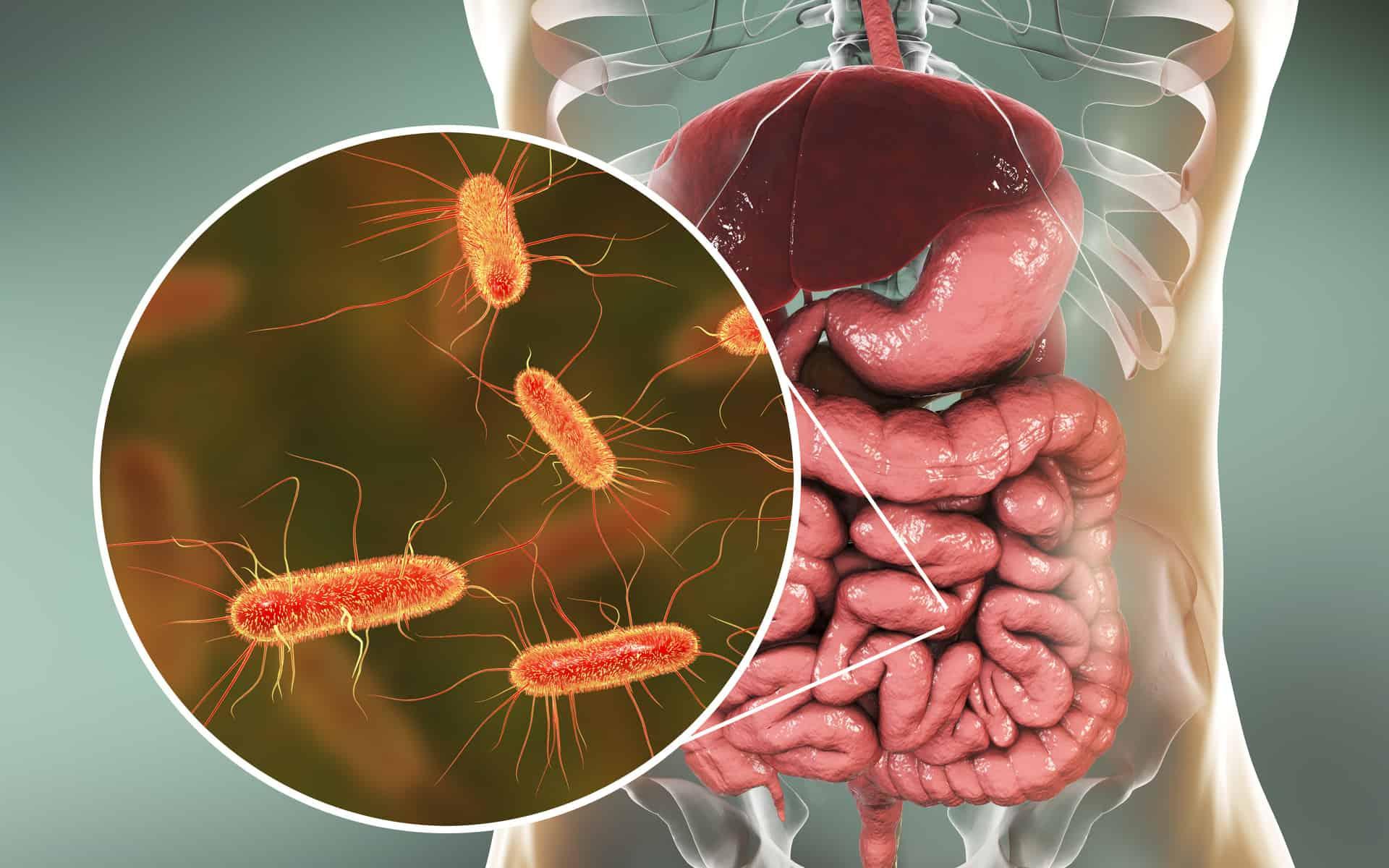 Сердечный приступ: кишечная бактерия может вызвать его