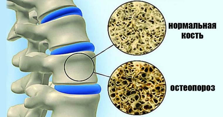 Бессонница облегчает остеопороз: у тех, кто мало спит, есть хрупкие кости
